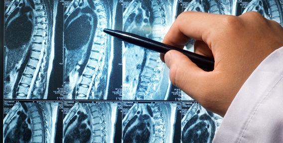 Магнитно резонансная томография позвоночника
